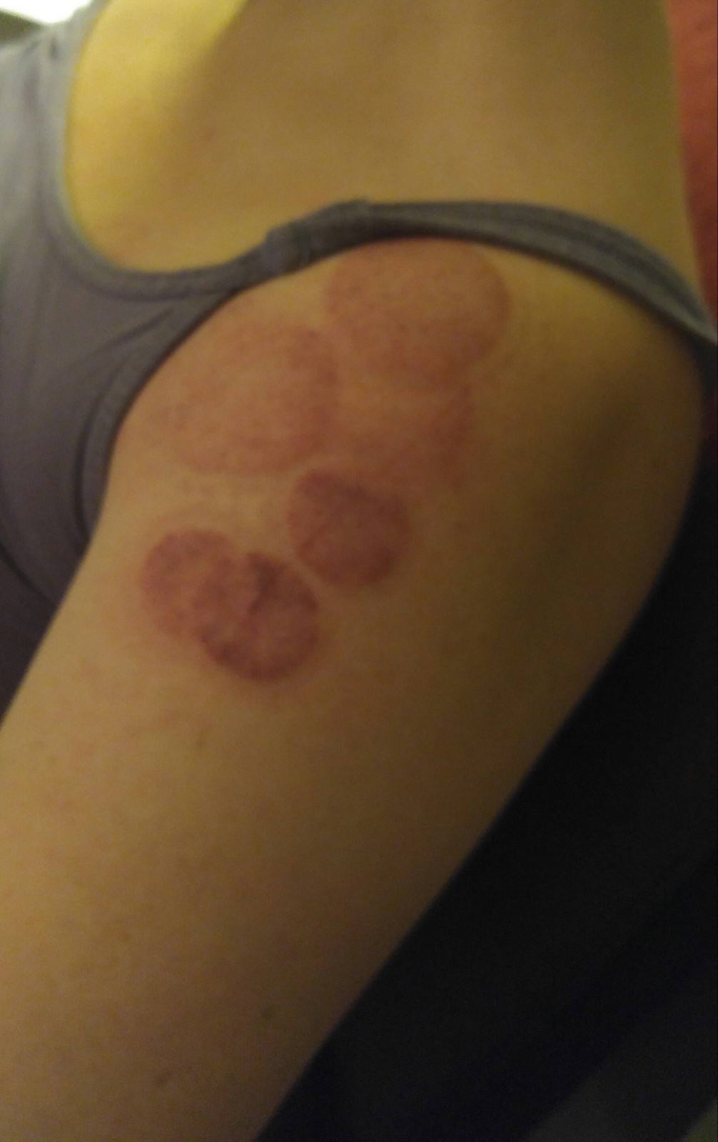 cupping arm