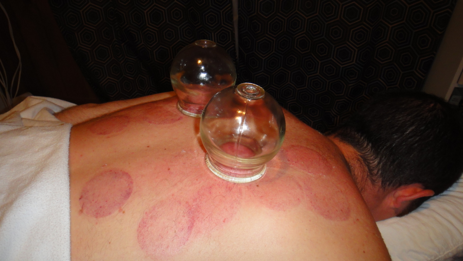 cupping back 1